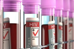 HIV treatment may affect brain