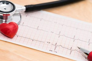 60% women unaware about age to begin heart screenings
