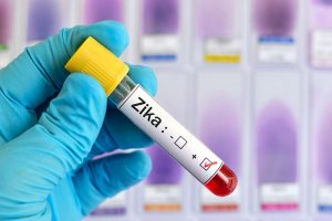 Spanish scientists discover potential anti-Zika drug