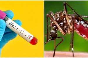 Zika may not spread by kissing