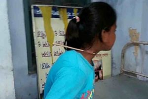 Girl archer's throat pierced by arrow, out of danger