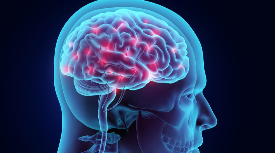 Structural differences in brain linked to epilepsy