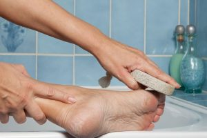 7 natural ways to treat cracked heels
