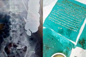 72 coins removed from Maharashtra man's stomach!