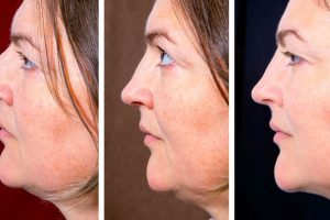 Painless and inexpensive ways to reduce double chin