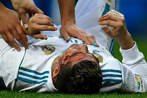 Zinedine Zidane updates on Cristiano Ronaldo's head injury