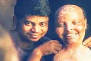 Acid attack victim gets engaged on 14 Feb