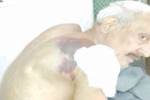 Senior citizen assaulted by Home Guards