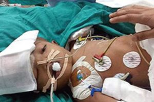 NHRC seeks Action Taken Report from AIIMS director to ensure justice for conjoined twins