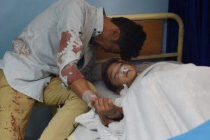 Blast during voter registration process kills 31 in Kabul, injures 56