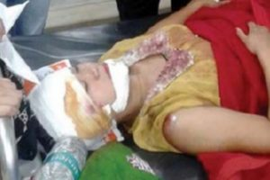 TMC poll candidate hurt in road crash; BJP comes to the rescue