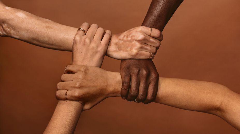 Vitiligo, World Vitiligo Day