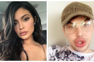 Kylie Jenner fan plays havoc with his lips in quest to get the 'perfect pout' | See video