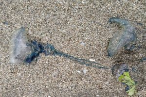 Mumbai: Over 100 injured in blue bottle jellyfish attacks at beaches
