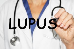 Indian-origin professor gets $2 mn grant to find why lupus is more common in women than men