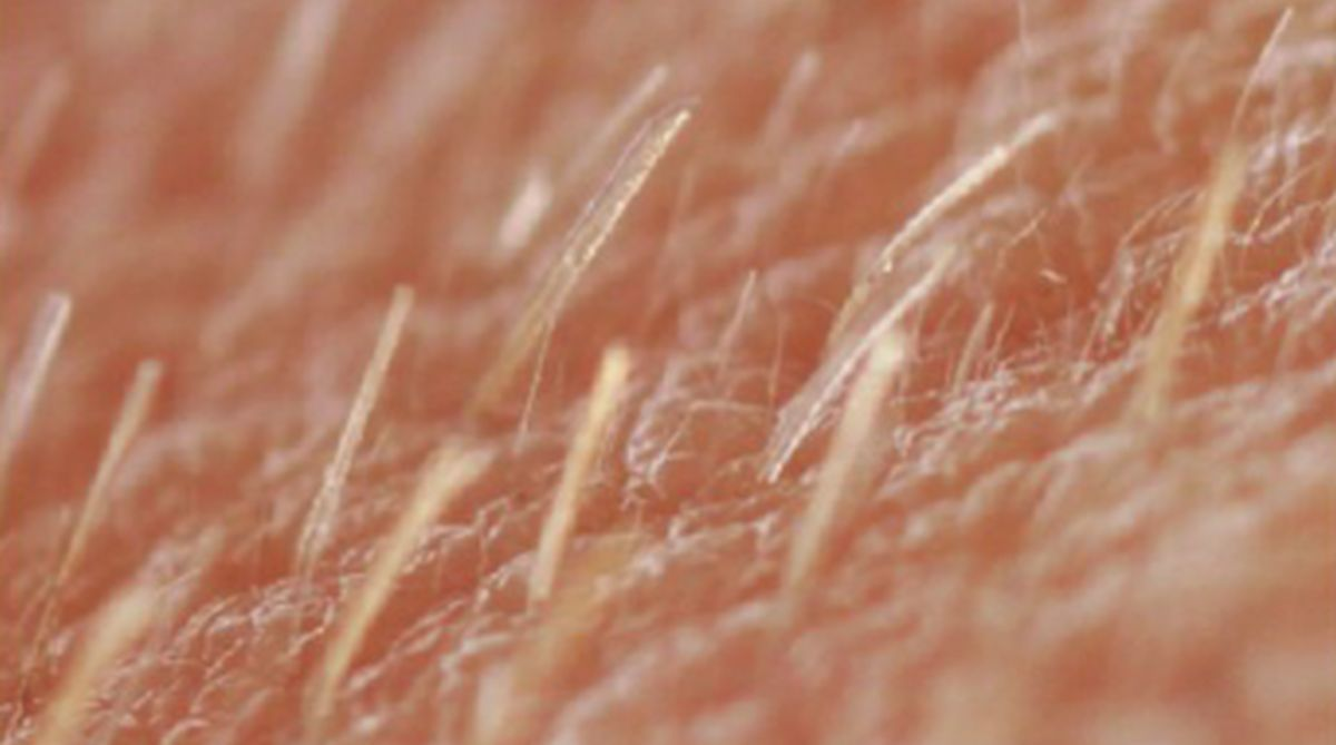 skin, Vitamin D,Universities of Manchester,Nature Communications,Dr G H Bishop,stems cells,Sandalore,OR2AT4, hair follicles