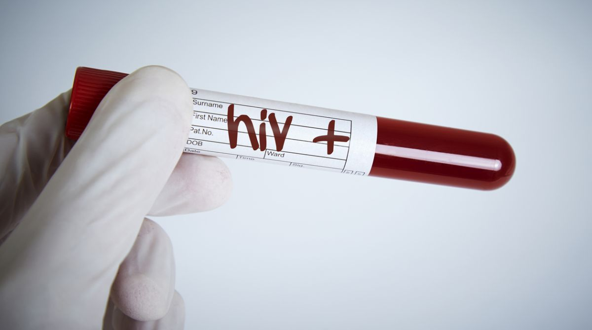 Nearly 40 individual HPV types linked to HIV infection