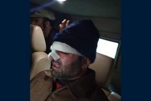 Srinagar Deputy Mayor Sheikh Imran injured in assault during SMC meeting