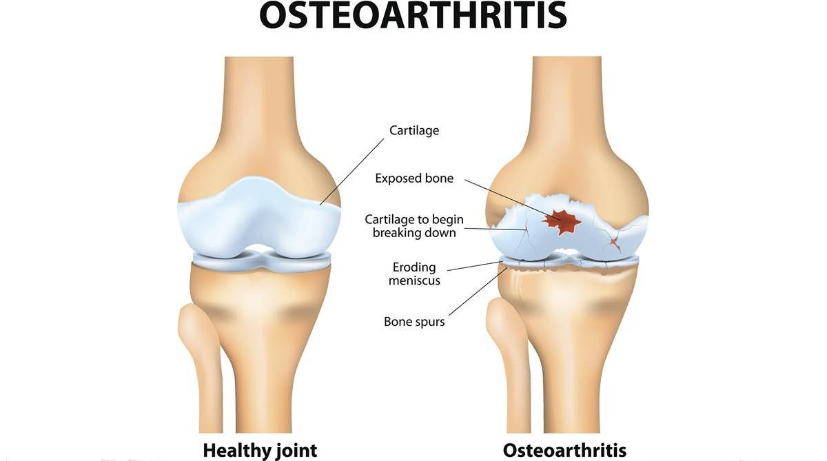 Stem cell therapies helpful in battling osteoarthritis