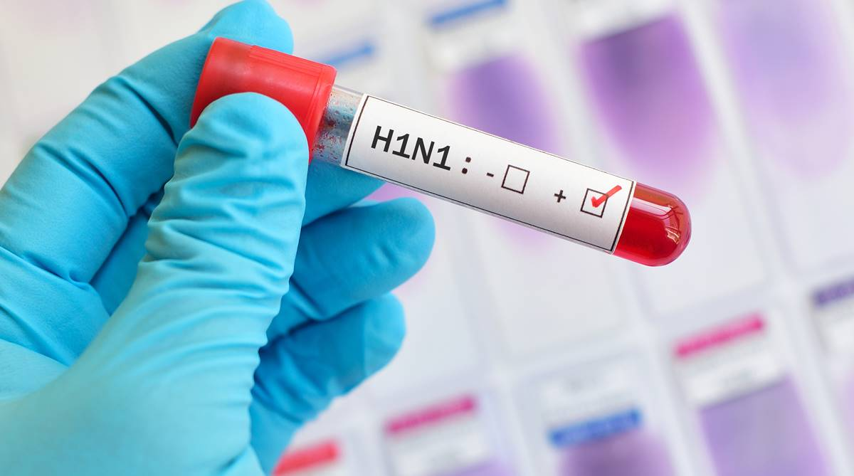 H1N1 virus, Swine flu, H1N1, Swine flu outbreak, Swine flu symptoms, Swine flu cases, Swine flu treatment