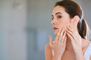 Best natural ingredients to cure acne marks