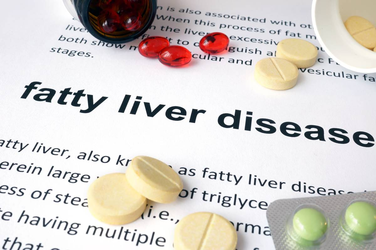 Even the skinny can get fatty liver