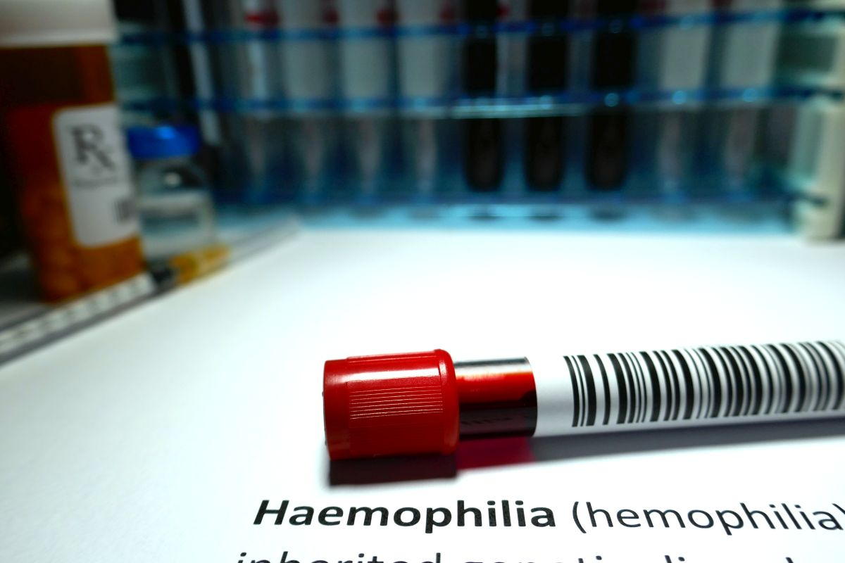Haemophilia, World Federation of Hemophilia, WFH, Saifee Hospital, Excessive bleeding