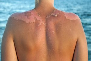 Exposure to sun ups skin cancer risk in athletes