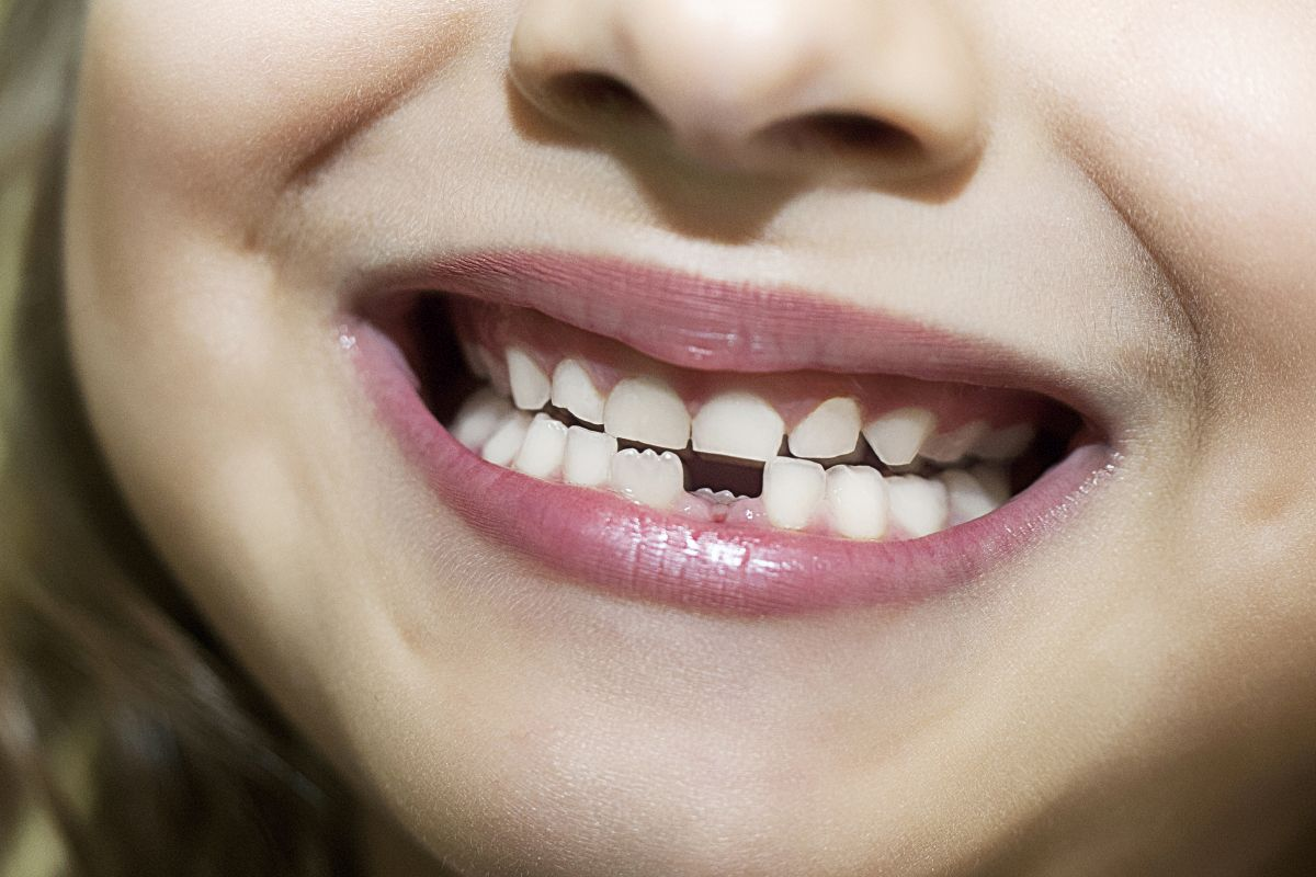 Tooth loss linked to higher risk of heart disease