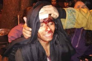 'Today my daughter, tomorrow…': injured JNUSU president Aishe Ghosh's father on mob attack