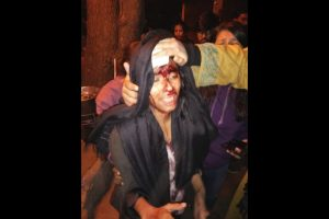 Violence erupts at JNU; teachers, students beaten up, JNUSU alleges ABVP involvement