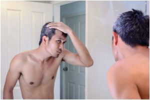 Causes of premature greying of hair