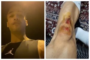 Bigg Boss fame Asim Riaz attacked by goons, suffers injuries
