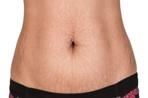 Treating stretch marks during and post-pregnancy