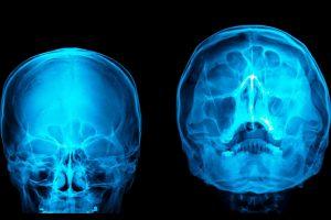 At NBMCH, black fungus patient undergoes sinus surgery