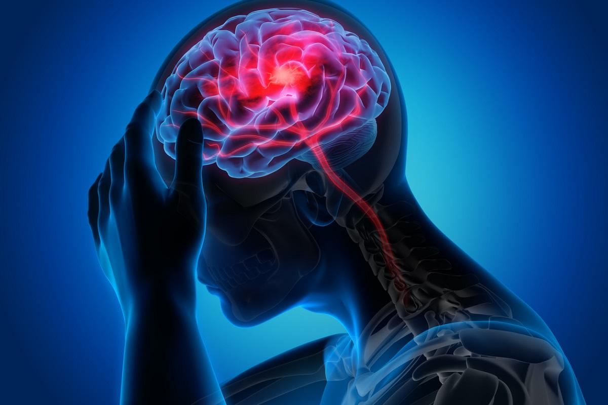Stroke, neurological disorders, The Lancet, Alzheimer's